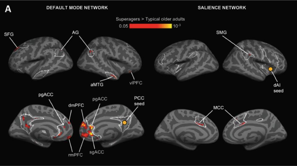 Участъци на усилени връзки в мозъка