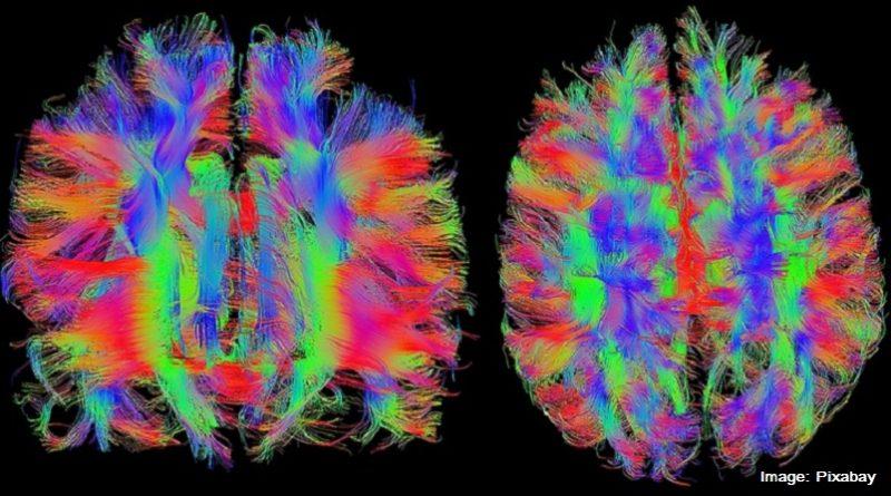 фМРТ на мозък