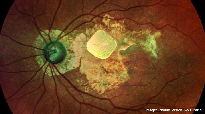 око с имплант
