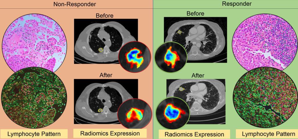 Илюстрация на разликите във въздействието на имунотерапията при различни пациенти